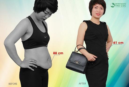 Đừng mãi sống chung với béo phì, phụ nữ luôn có quyền xinh đẹp và làm đẹp!