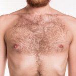 Tìm hiểu nguyên nhân mọc nhiều lông ở nam giới và cách khắc phục hiệu quả nhất