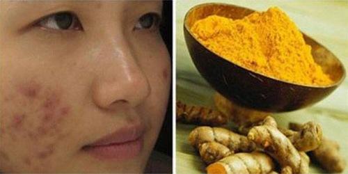 Các phương pháp tự nhiên không loại bỏ được  sẹo trên da.