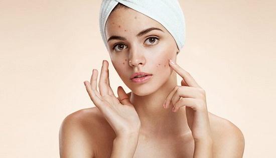 Những vết thâm trên mặt thường khiến các bạn nữ mất tự tin và lo lắng không ít