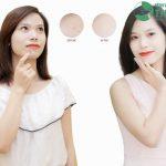 Thay da sinh học trị mụn – Phương pháp làm đẹp thời thượng