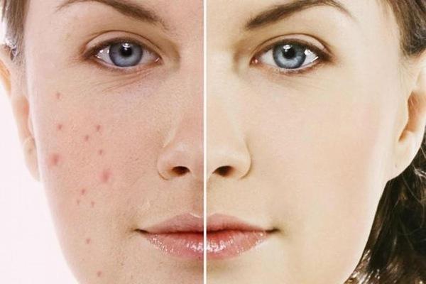 Sẹo thâm hình thành từ những tổn thương trên da như: mụn, thủy đậu,