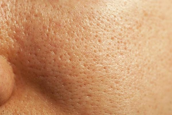 Lỗ chân lông to là một khuyết điểm lớn đối với làn da phụ nữ