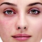 Làm thế nào để khắc phục tình trạng giãn mao mạch ở mặt?