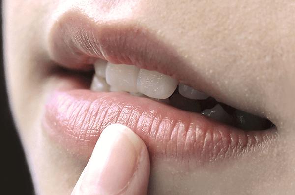 Làm thế nào để trị thâm hiệu quả vùng mép miệng