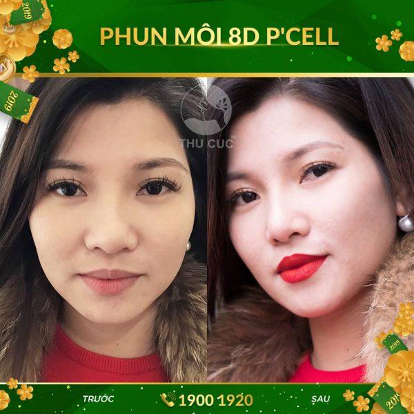 Kết quả sau khi phun môi 8D P'cell tại Thu Cúc
