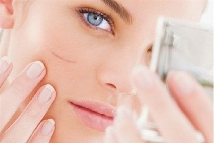 Sẹo trên gương mặt là một trong những yếu tố gây mât thẩm mỹ