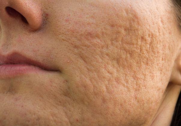 Làn da bị sẹo rỗ gây mất tự tin trong giao tiếp và cuộc sống hàng ngày của bạn