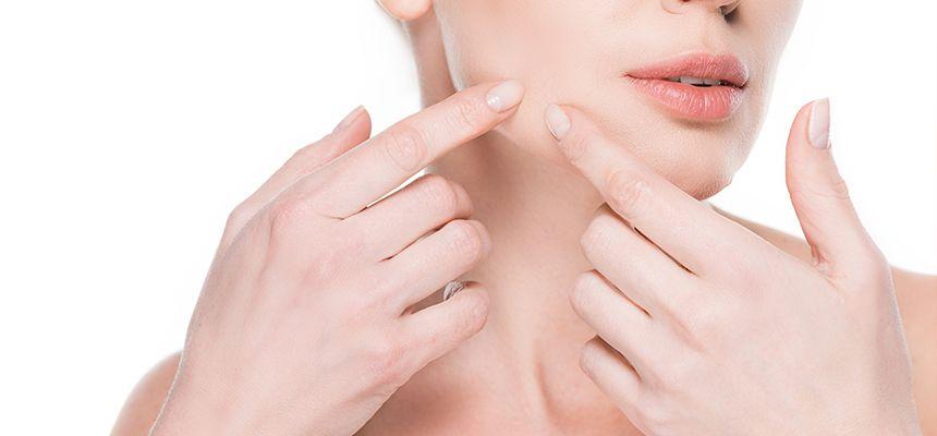 Xông hơi mặt có thể giúp điều trị mụn