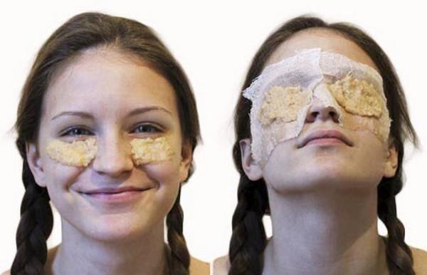 Chuối đắp mắt giúp giảm thâm quầng và bọng mắt