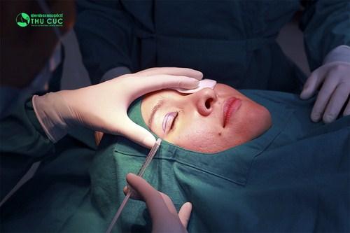 cắt- mí-không-phẫu-thuật