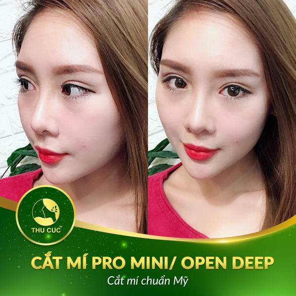 cat-mi-mat-tren-can-kieng-gi4