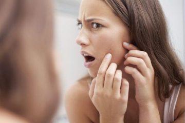 7 cách trị mụn nhanh chóng để bạn lấy lại diện mạo xinh đẹp trong tích tắc