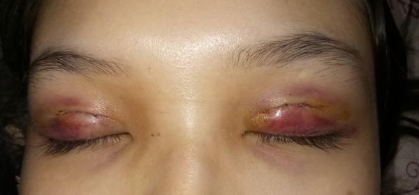 cắt mí mắt bị bầm tím