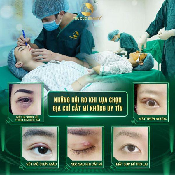 tác hại của cắt mí mắt