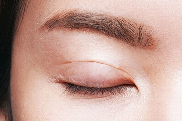 tác hại cắt mí mắt