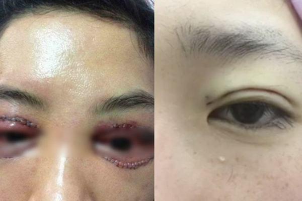 cắt mí mắt bị hỏng
