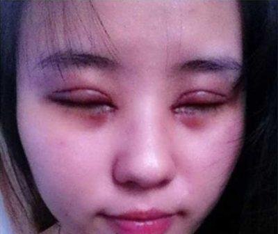 cắt mí mắt bị sâu