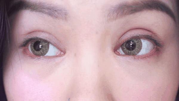 cắt mí mắt bị to