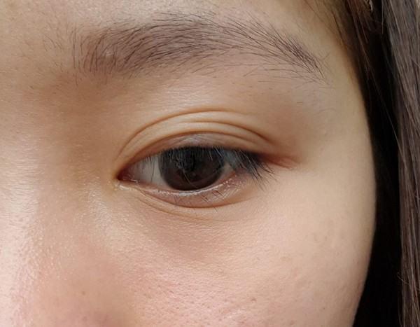 mắt 3 mí