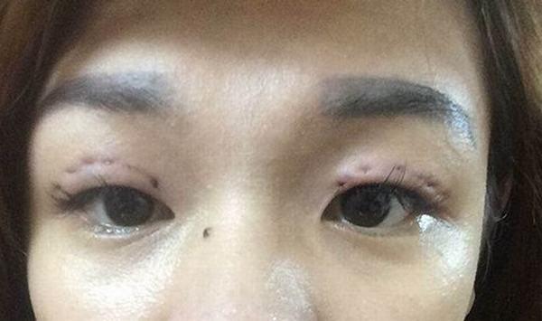 cắt mí mắt bị lỗi
