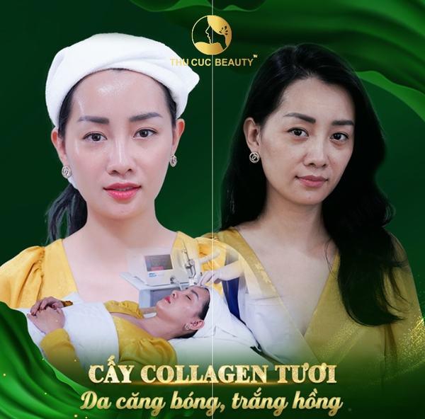 cay-collagen-tuoi-16
