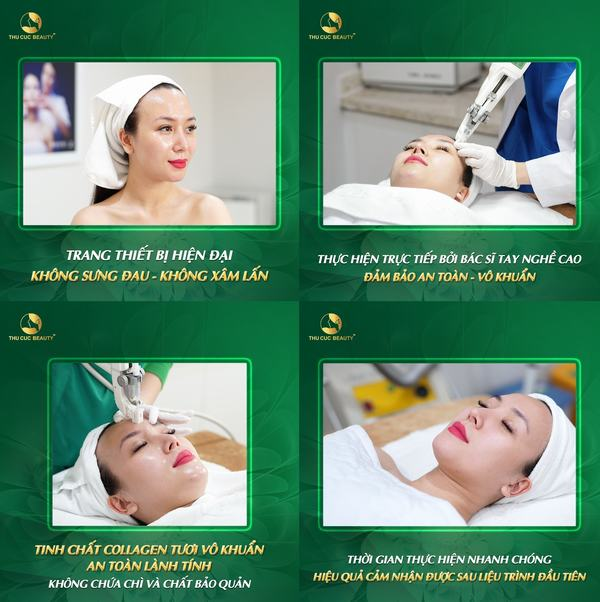 cay-collagen-pcell-filler