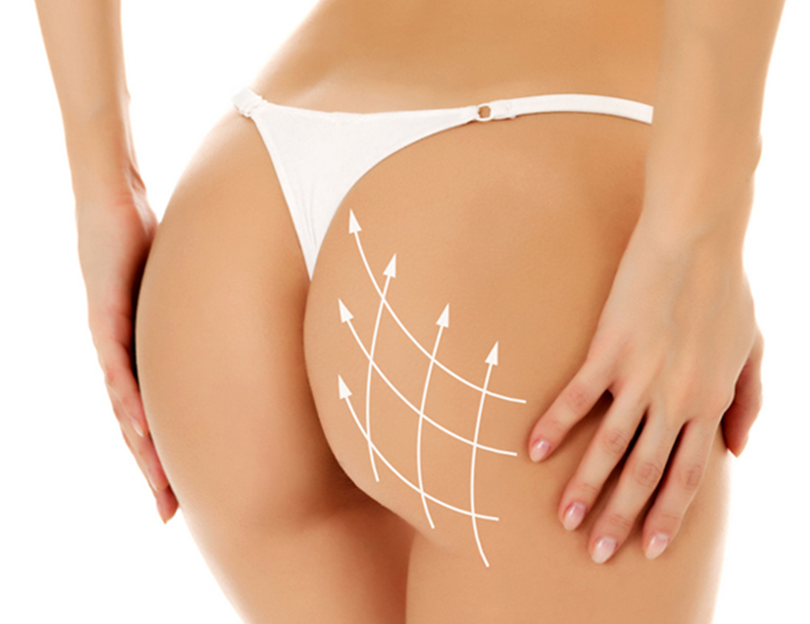 Nâng mông bằng cấy mỡ tự thân | Bệnh viện Thẩm mỹ Thu Cúc