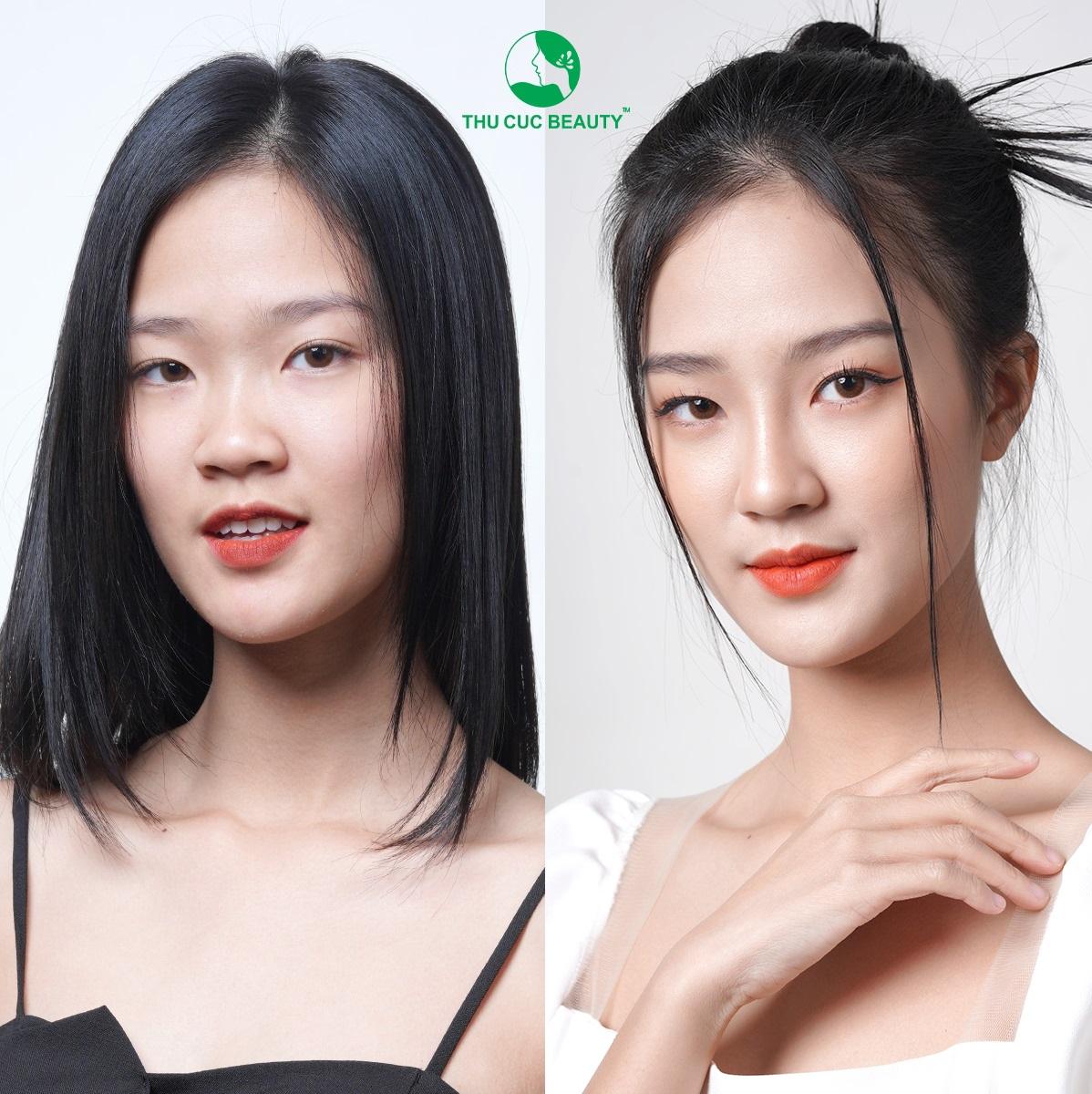 nang-mui-co-can-xem-tuong-khong