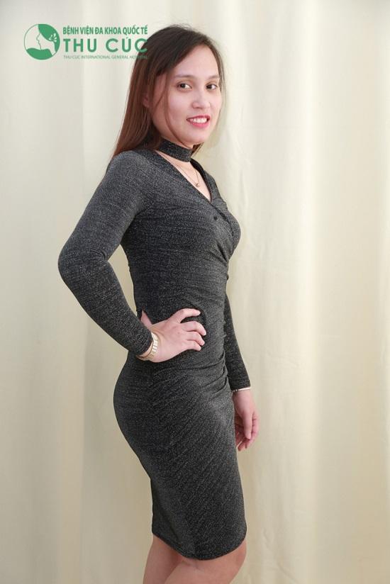 """Vóc dáng """"thách thức"""" mọi trang phục sau hút mỡ của nữ nhân viên kinh doanh(Lưu ý: Kết quả còn tùy thuộc vào cơ địa mỗi người)"""