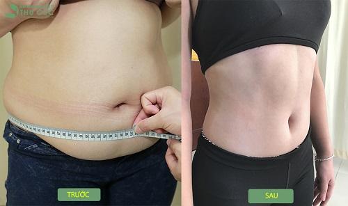 """95% khách hàng đã """"lột xác"""" thân hình sau khi sử dụng phương pháp giảm béo bằng Vaser Lipo tại Bệnh viện Thu Cúc (Lưu ý: Kết quả còn tùy thuộc vào cơ địa mỗi người)"""