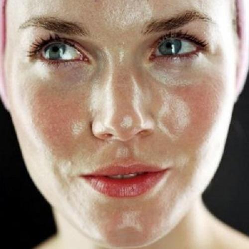 نتيجة بحث الصور عن البشرة الدهنية