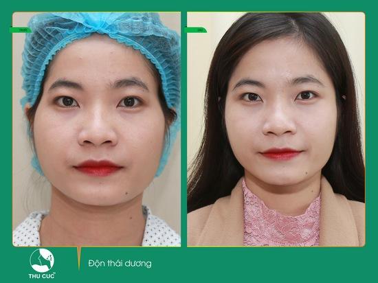 Gương mặt đầy đặn và cân đối hơn sẽ giúp bạn tự tin ở mọi góc nhìn (Lưu ý: Kết quả còn tùy thuộc vào cơ địa mỗi người)