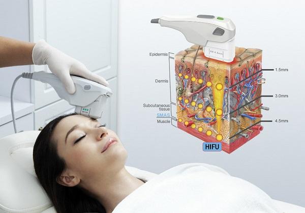 Công nghệ Hifu tác động vào lớp SMAS trên da