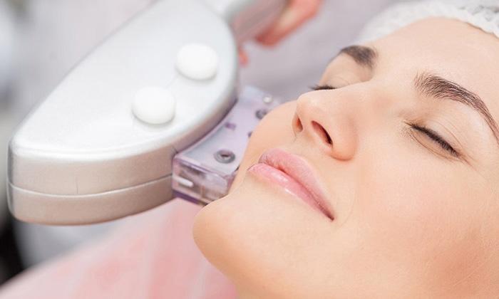 Công nghê Hifu điều trị nếp nhăn là công nghệ mới nhất trên thế giới